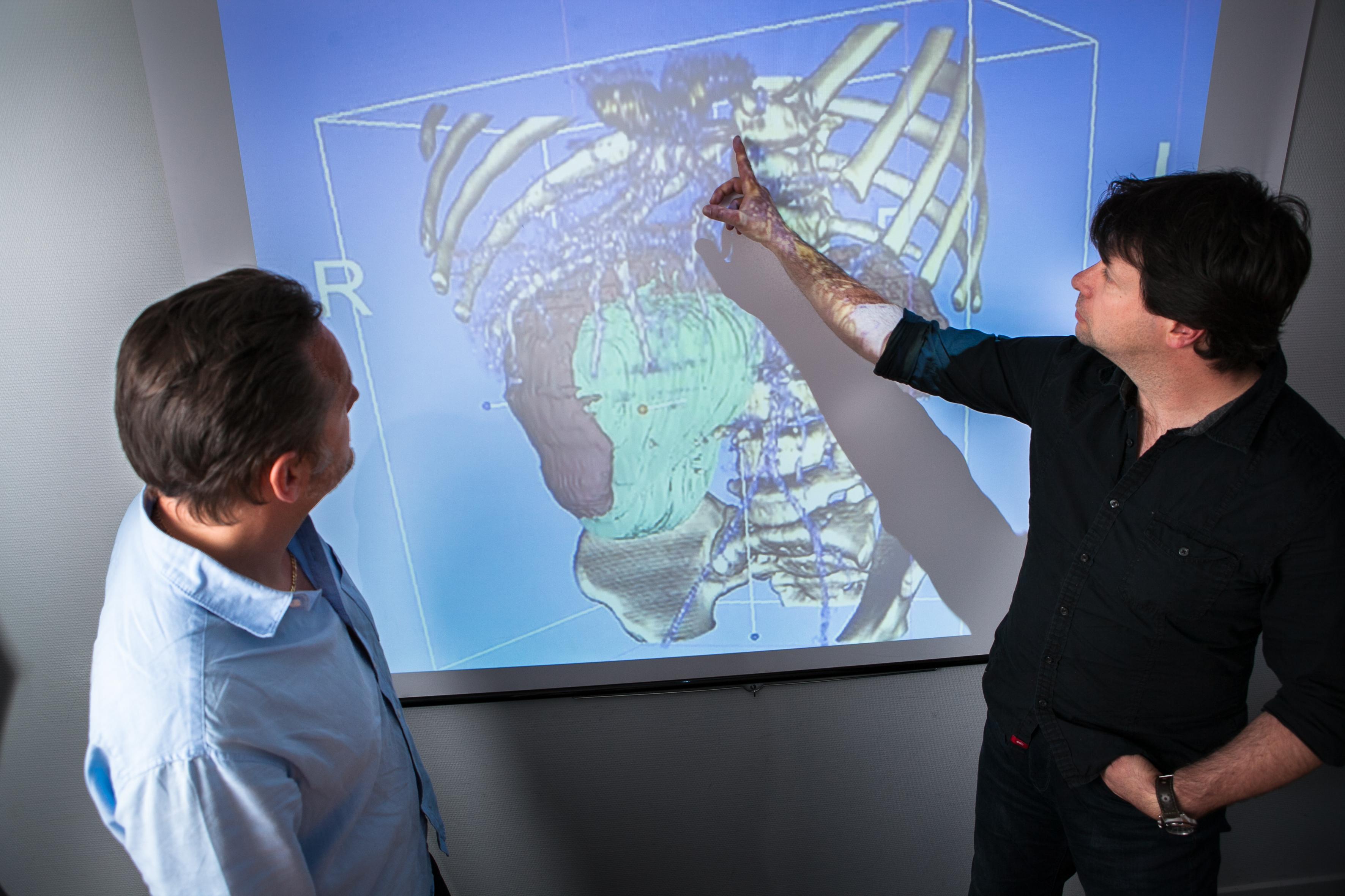 SAIAD: Concevoir un outil de traitement d'images médicales par intelligence artificielle